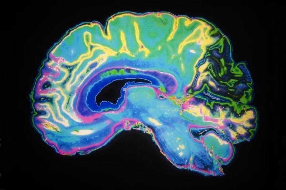 brain scans harley street
